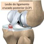 Lesão do Ligamento Cruzado Posterior (LCP)